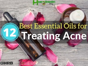 12 Best Essential Oils for Acne & How to Use Correctly