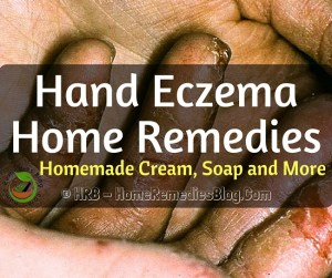 Top 12 Hand Eczema Home Remedies To Treat Faster