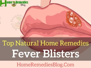 How To Get Rid of Fever Blisters Effectively (Complete Guide)