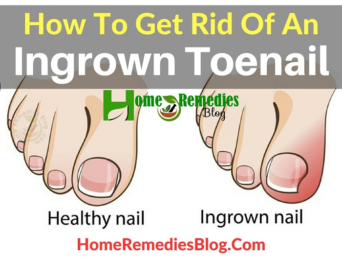 Home Remedies To Get Rid Of An Ingrown Toenail Painlessly