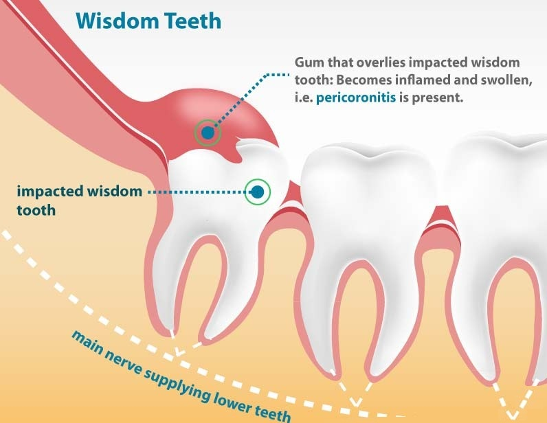 Impacted Wisdom Tooth Pain