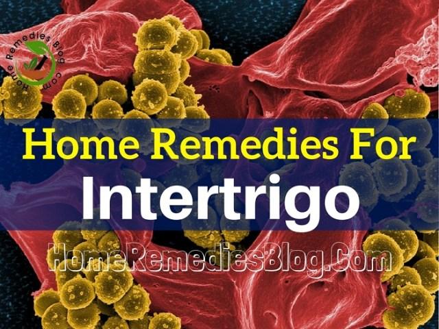 15 Effective Intertrigo Home Treatments