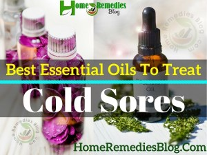 8 Best Essential Oils For Cold Sores and How To Use Them