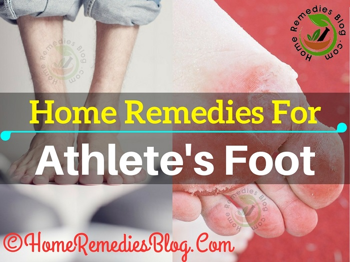 Best Home Remedies To Treat Athlete's Foot Naturally