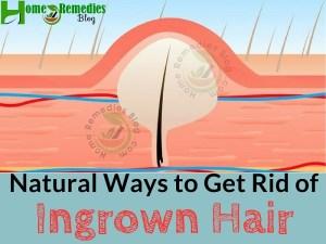 Best Natural Ways to Get Rid Of Ingrown Hair