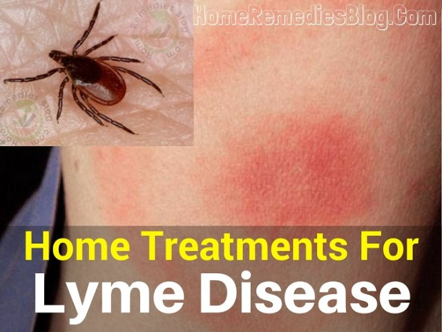 Natural Home Treatments for Lyme Disease Rash