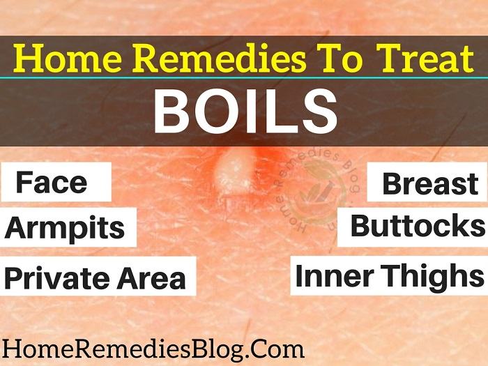 11 Home Remedies For Boils