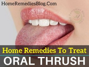 Home Remedies To Treat Oral Thrush Naturally