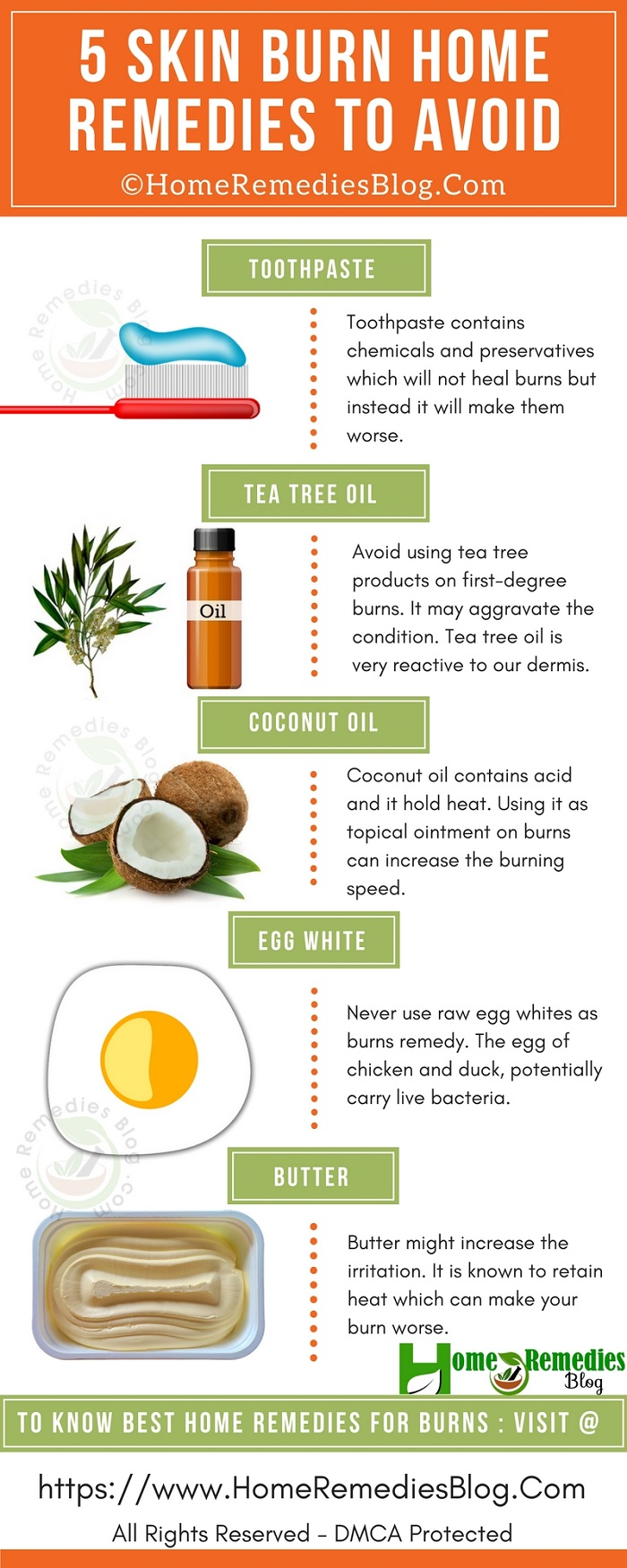 5 Home Remedies for Burns To Avoid