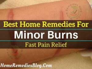 7 Soothing Home Remedies for Burns and 5 You Must Avoid