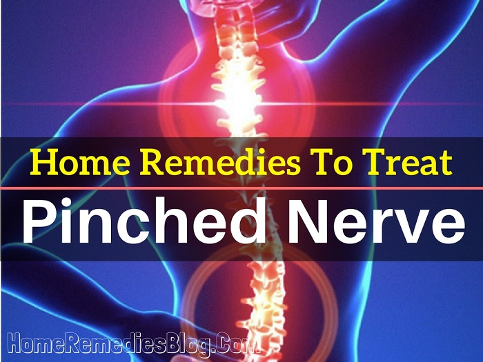 Top 12 Home Remedies To Treat Pinched Nerve Naturally