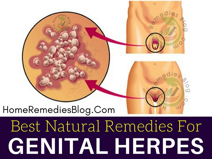 12 Best Home Remedies To Treat Genital Herpes Naturally - Home