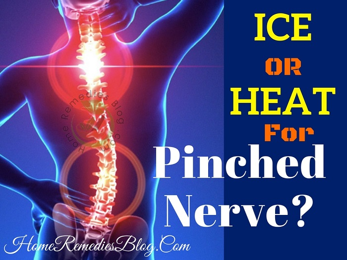 Ice or Heat for Pinched Nerve