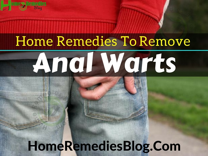 15 Effective Home Remedies To Remove Anal Warts Naturally