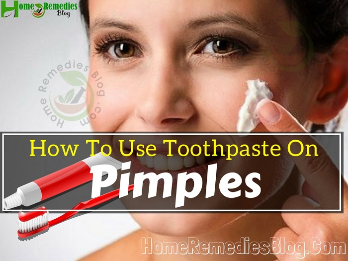 How To Use Toothpaste on Pimples