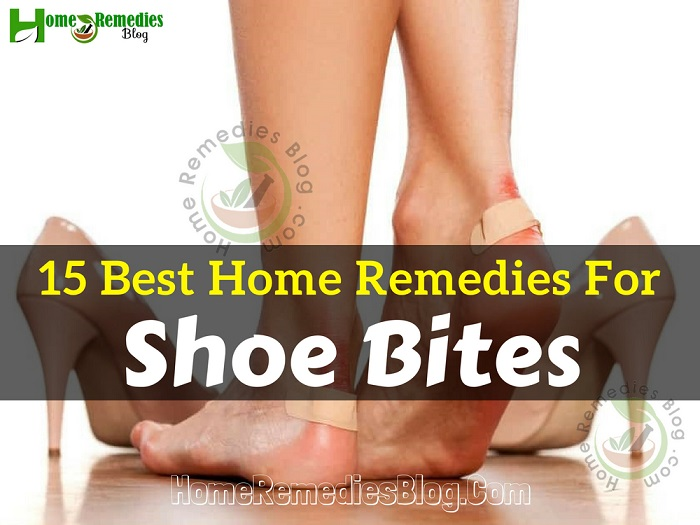 15 Best Home Remedies For Shoe Bites