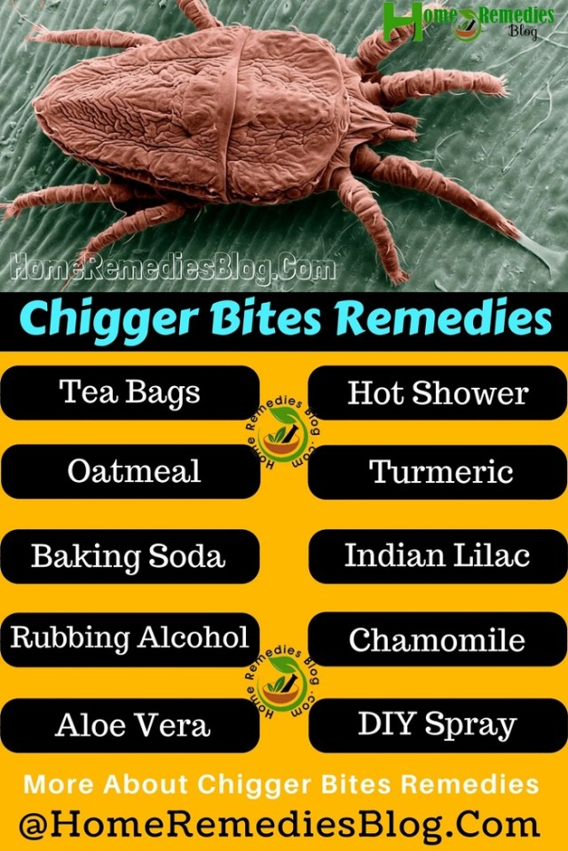 Chigger Bites Home Remedies Infographics
