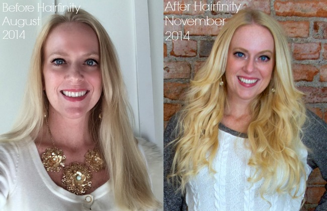 Do Hair Vitamins Really Work Home Stories A To Z