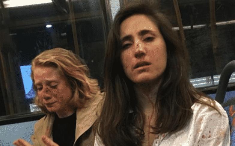 atacantes-sexo-lesbianas