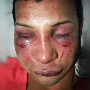 mes-orgullo-golpiza-joven-gay-venezuela