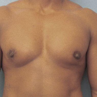 hombre trans mamoplastía