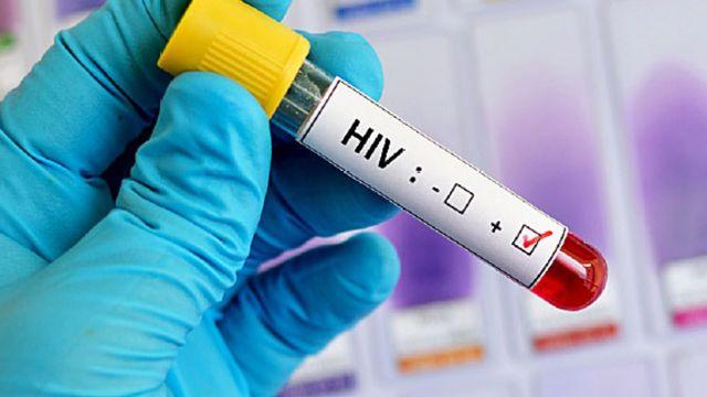 Diagnóstico de casos de VIH