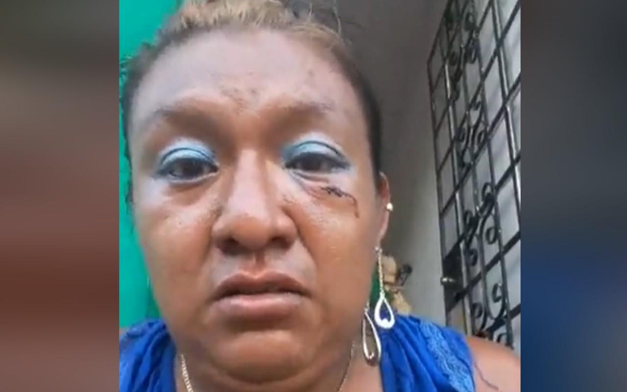 policía de Yucatán ignora a mujer trans golpeada