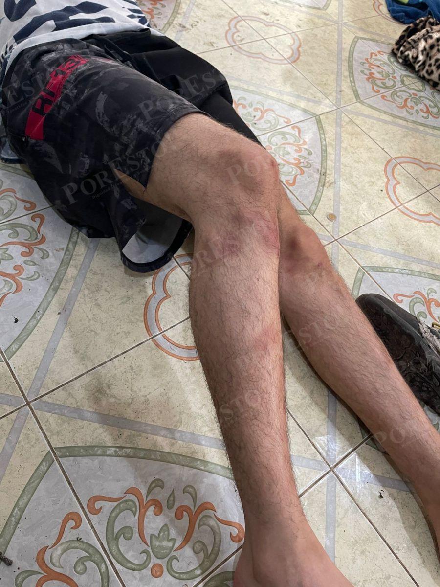 Joven asesinado por la Policía de Mérida