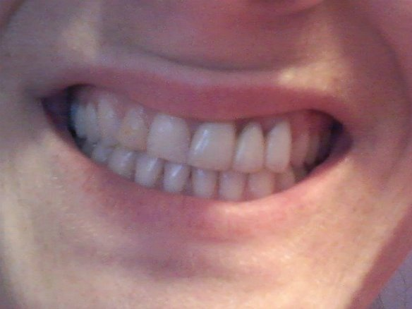 Smile before I start the #HappyHealthySmiles challenge