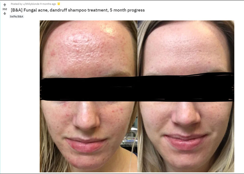 Fungal Acne: What is it? Have you got it? How to get rid
