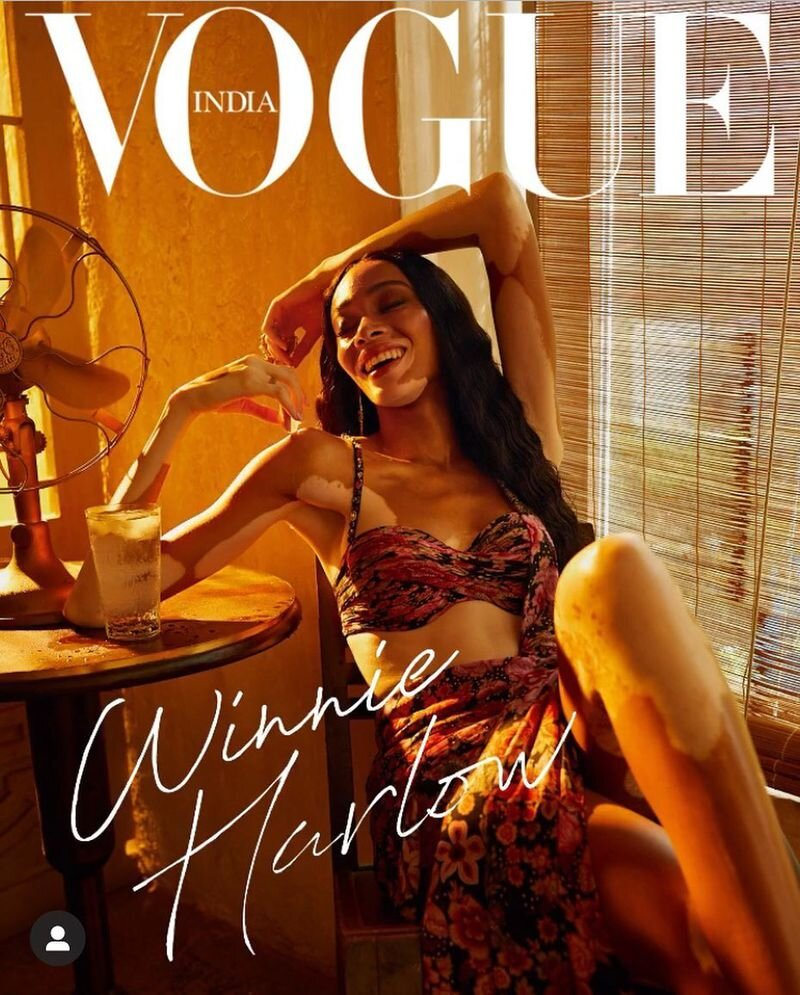 Winnie Harlow for Vogue India March 2020. Photographed by Billy Kidd and styled by Priyanka Kapadia.
