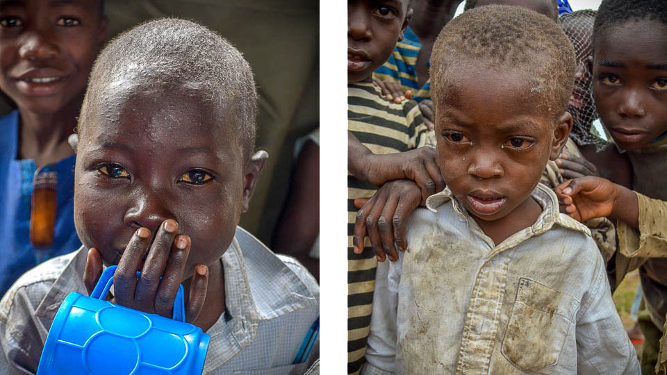 HopeForTomorrowGlobal - Malnourished child Carama & DSC_0008 - 460x2
