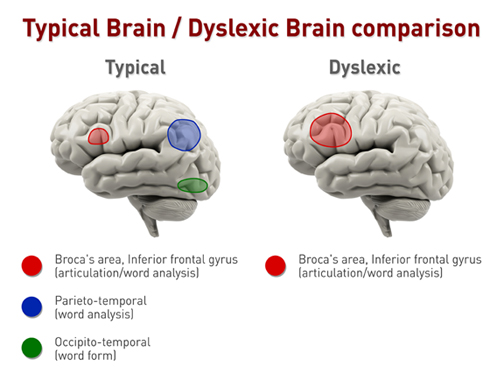 Image result for the dyslexic brain