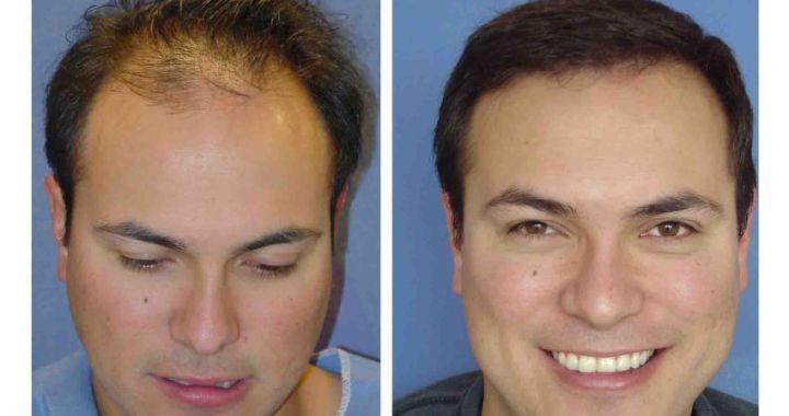 Tipos de trasplantes capilares para hombres y mujeres