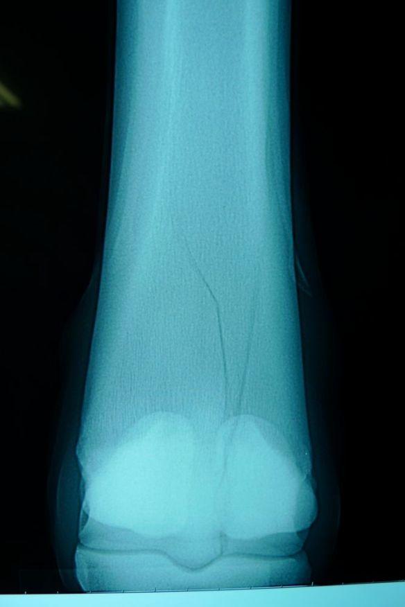 馬の螺旋状骨折