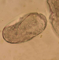 Strongyles are a common horse parasite that pose a major threat if burdens are not properly managed.