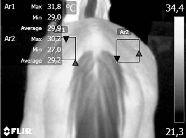 One of the infrared thermographic images taken by the researchers.