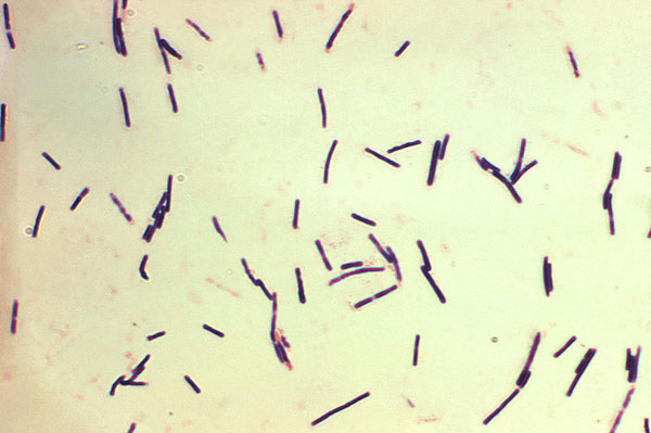 This photomicrograph reveals Clostridium perfringens grown in Schaedler's broth using Gram-stain. Photo: CDC/Don Stalons (public domain), via Wikimedia Commons