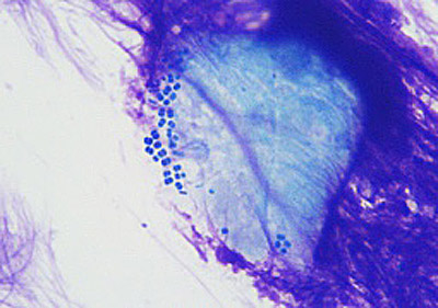 An image taken through a microscope from a canine skin infection showing multidrug-resistant bacteria (MRSP, similar to MRSA) among inflammatory cells.