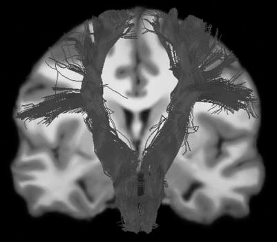 Coronal view of the left and right corticospinal tracts from a control subject overlaid over her individual anatomical reference image.