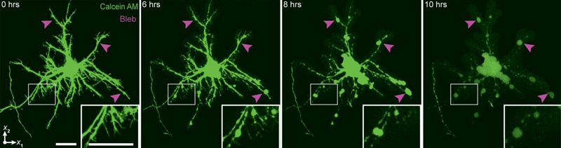 "Using a technique that can image neurons in real time following the application of compressive strain, researchers from Brown University have shown that irreversible damage occurs in cells about six hours after a trauma in lab samples. The finding suggests that there might be a window of therapeutic intervention aimed at limiting the damage in people who have suffered a blow to the head. The image shows the formation of ""blebs"" in neural axons, a tell-tale marker of traumatic brain injury. Photos: Franck Lab at Brown University"