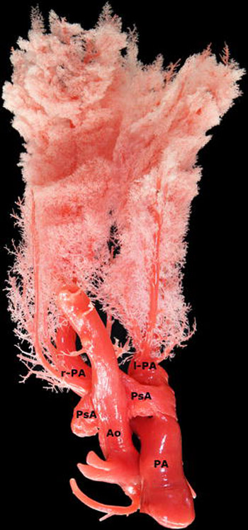 A view from above of a silicone cast from a Friesian horse with the caudoventral aortic rupture (Ao) and aortic pseudoaneurysm (PsA) fistulating into the dorsal side of the pulmonary artery (PA). (l-PA: left branch of the pulmonary artery, r-PA: right branch of the pulmonary artery).