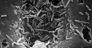 Mycobacterium bovis. Photo: CDC