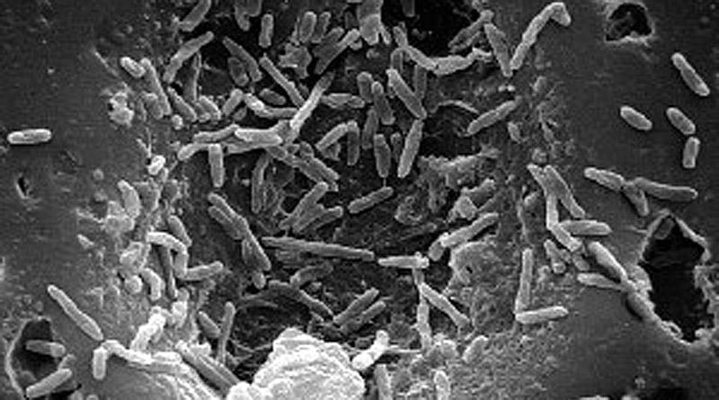 Mycobacterium bovis. Photo: CDC