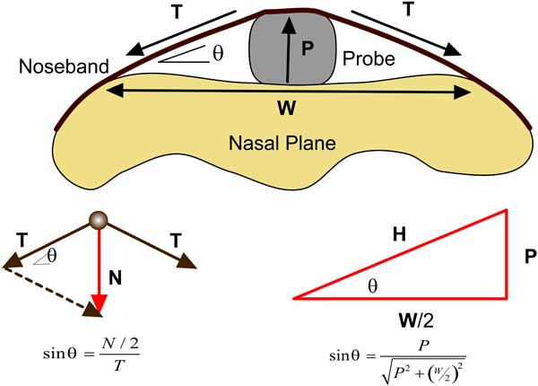 A schematic representation of the probe inserted between the noseband and midline of the nasal plane. N is the noseband force, L is the measured force/load, P is the height of the probe and W is the lift-off width at the nasal plane.