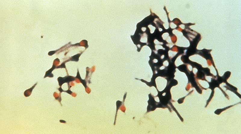 An image of Clostridium tetani bacteria, responsible for causing tetanus. Micrograph: Centers for Disease Control and Prevention (public domain), via Wikimedia Commons