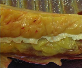 Post mortem image of the ventral abdominal wall of an obese pony (not the above pony).