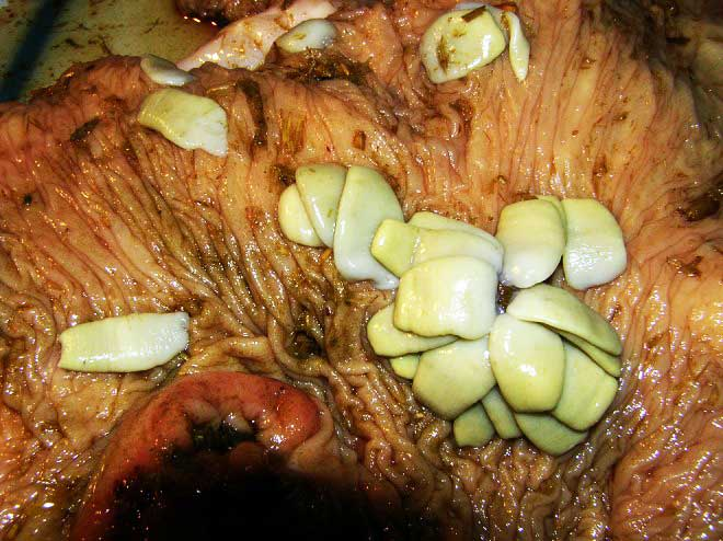 An infection with Anoplocephala perfoliata, the most common intestinal tapeworm of horses. Photo: Krzysztof Tomczuk, Krzysztof Kostro, Klaudiusz Oktawian Szczepaniak, Maciej Grzybek, Maria Studzińska, Marta Demkowska-Kutrzepa, and Monika Roczeń-Karczmarz CC BY 4.0 via Wikimedia Commons