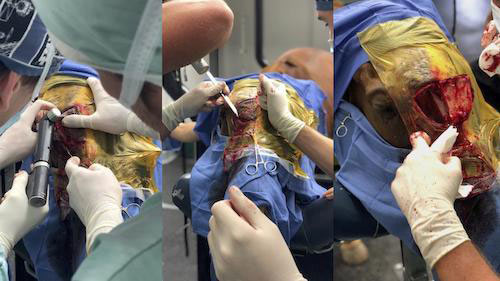 View of the ethmoid hematoma bone flap surgery performed by Dr Michael Myhre and Dr Weston Davis.