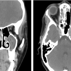CT scans show evidence of the infection. Images: Kutsukutsa et al. https://doi.org/10.1186/s12886-019-1126-x